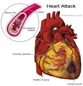 heart_attack.jpg